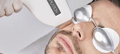 Epilation définitive laser visage barbe homme