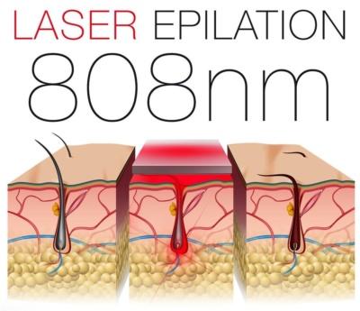 Epilation definitive laser 808 nm phases