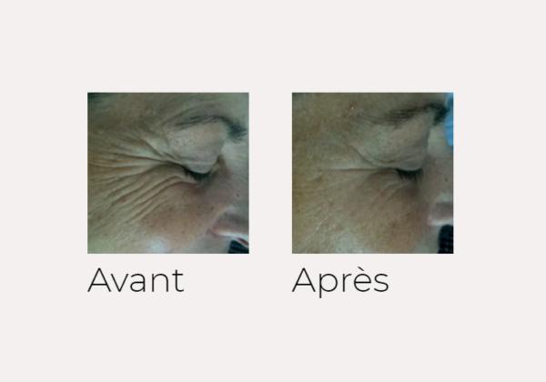 X-SKIN AGE traitement visage avant-après Ondadinamica Selènia Italia