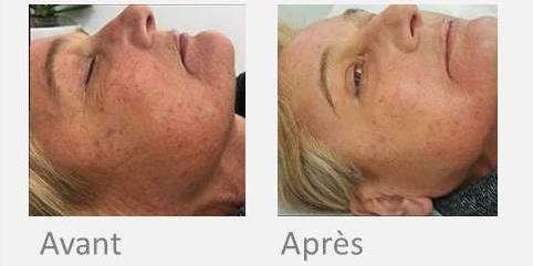 X-skin age femme