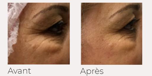 X-lift traitement visage avant-après Ondadinamica Selènia Italia