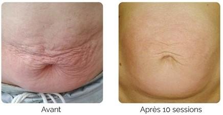 x-magic avant-après ventre traitement corps ondadinamica