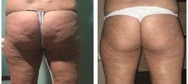 x-magic avant-après fesse traitement corps ondadinamica Selènia