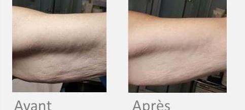 x-magic bras
