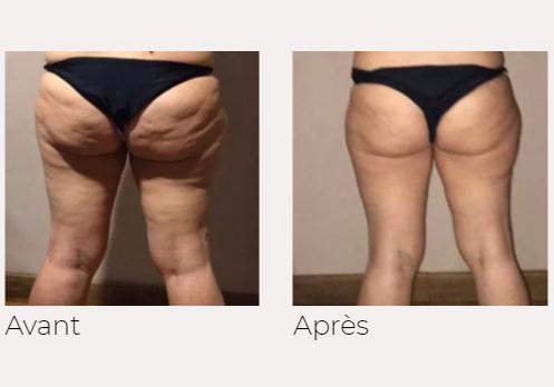 x-magic avant-après fesses jambes traitement corps Ondadinamica Selènia Italia