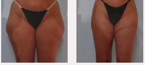 X-magic avant-après traitement corps Ondadinamica Selènia Italia