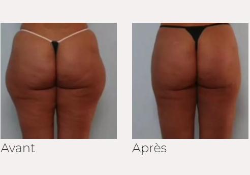 x-magic avant-après fesses traitement corps Ondadinamica Selènia Italia